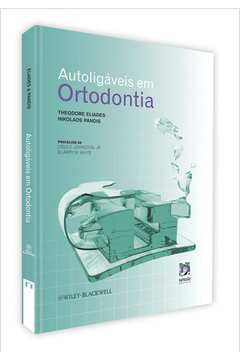 Autoligaveis Em Ortodontia